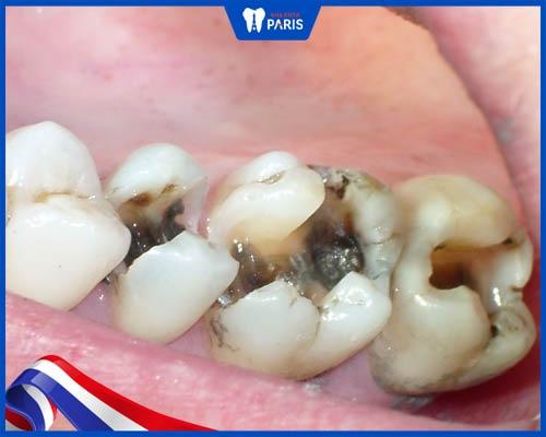 Răng bị mẻ vì sâu răng