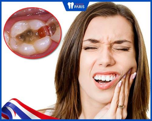 Răng bị mẻ gây đau nhức, tác hại của răng bị mẻ