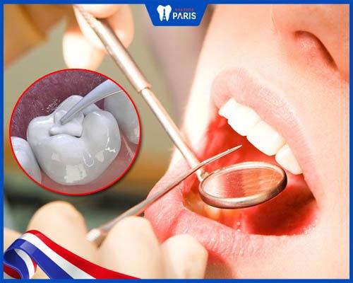 trám (hàn) phục hồi răng sứt mẻ
