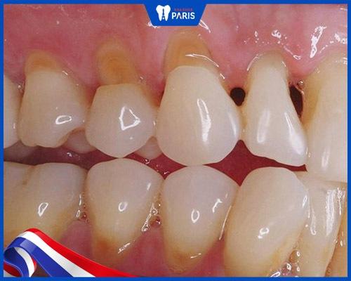 Răng bị mẻ có phục hồi được không