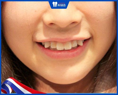 đặc điểm răng hổ ở người