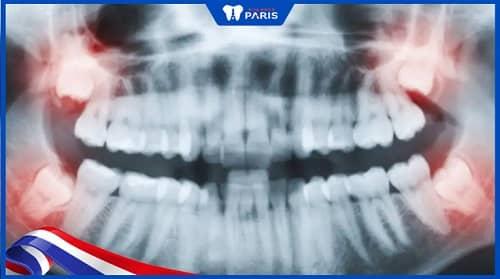 răng khôn mọc mấy lần