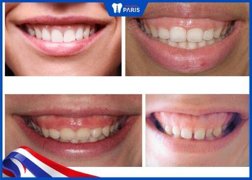 răng ngắn