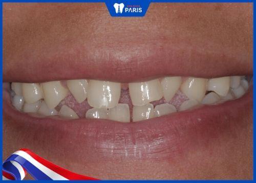 răng nhỏ