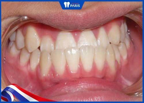 răng quặp có nguy hiểm không