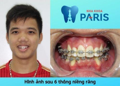 khắc phục răng quỷ