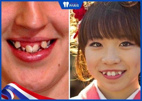 răng quỷ xấu
