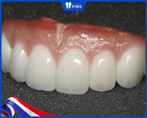 Răng sứ Zirconia là gì? Của nước nào?
