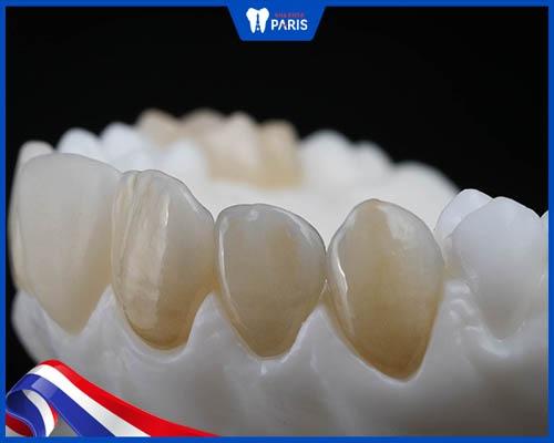 nên dùng loại răng zirconia nào
