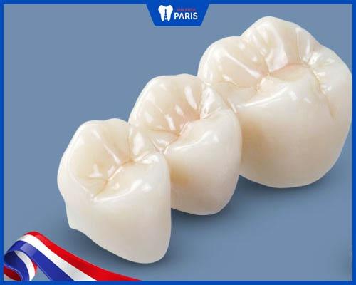 mão răng zirconia màu sắc tương đối đẹp