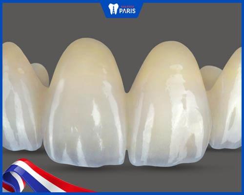 Răng sứ Zirconia có mấy loại?