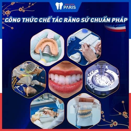 có nên dùng răng toàn sứ ddbio