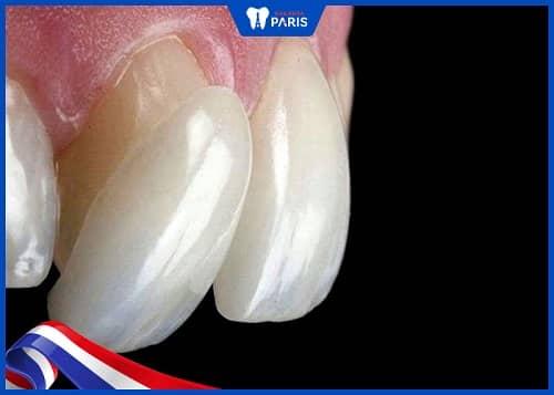 nguyên nhân làm răng sứ đổi màu