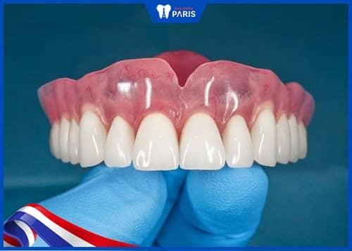 răng sứ đổi màu do vật liệu kém chất lượng