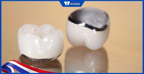 răng sứ titan trông như thế nào