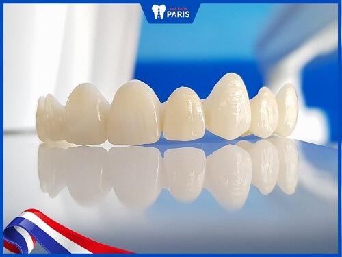 so sánh răng titan với răng toàn sứ