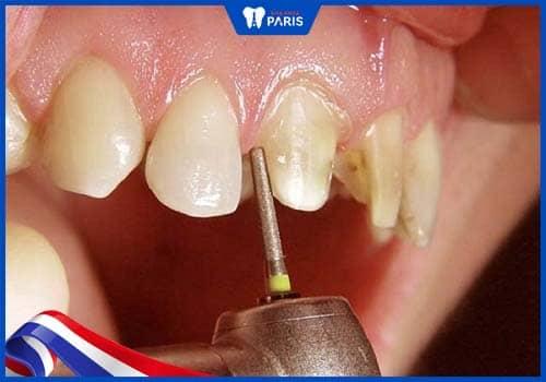 tại sao cầu răng sứ bị đau