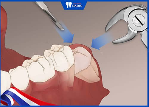 thời gian lành của lỗ hổng ảnh hưởng bởi vị trí răng, mức độ xâm lấn