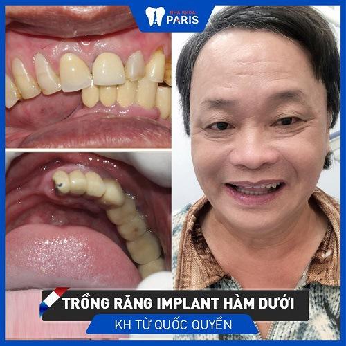 trồng răng implant cho răng số 5