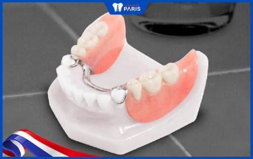 Cách trồng răng số 7 bằng hàm giả tháo lắp