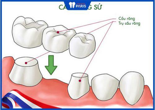 trồng răng hàm số 7 với cầu răng
