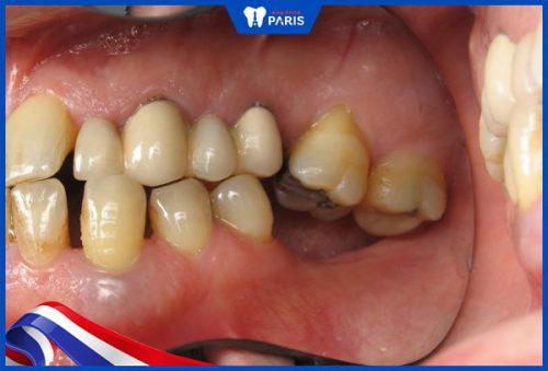 Mất răng số 7 gây tiêu xương hàm