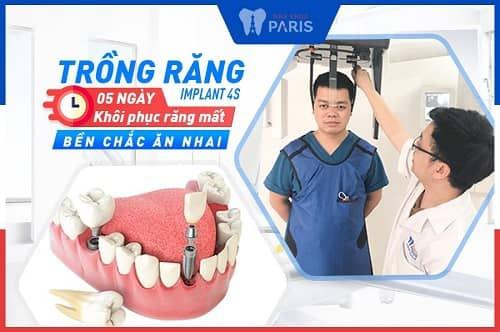 cấy răng số 7 với implant