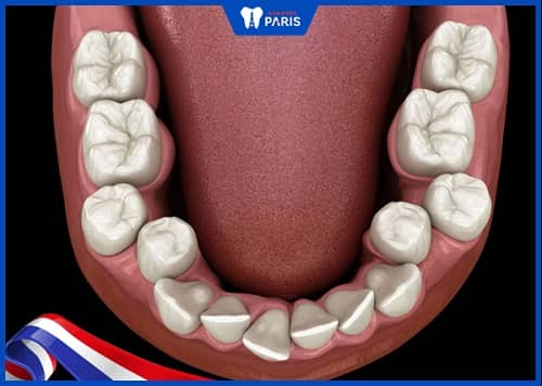 dắt răng do răng mọc lệch