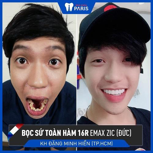 khách hàng chữa răng 9630