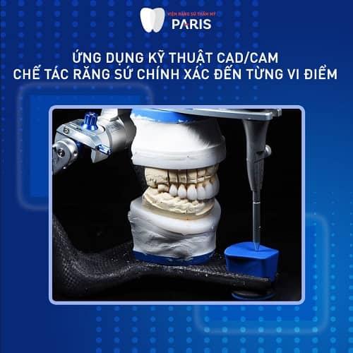 công nghệ chế tác răng sứ chrome cobalt hiện đại