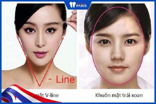 Mặt V line và trái xoan