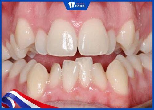 hình ảnh hàm răng 9630
