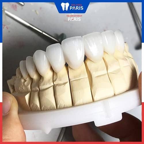 giá răng sứ chrome cobalt