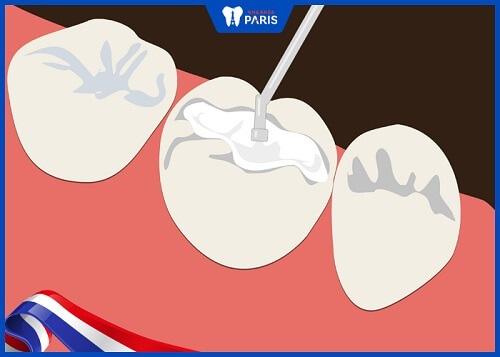 trám răng sâu có tốt không