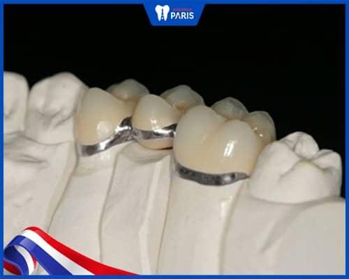 ưu nhược điểm của răng sứ crom cobalt