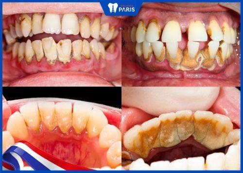 bao lâu lấy cao răng 1 lần