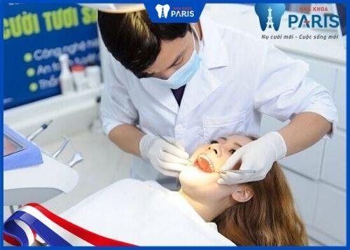 bao lâu nên lấy cao răng một lần