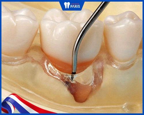 Lấy cao răng bị ê buốt chảy máu