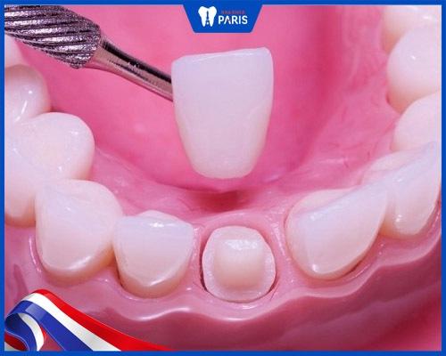 gắn răng sứ có đau không