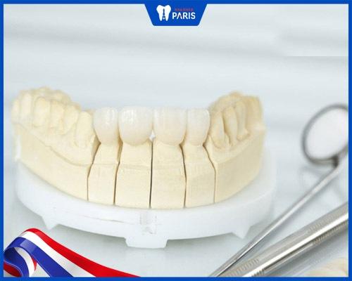lựa chọn răng sứ cao cấp tránh đau nhức