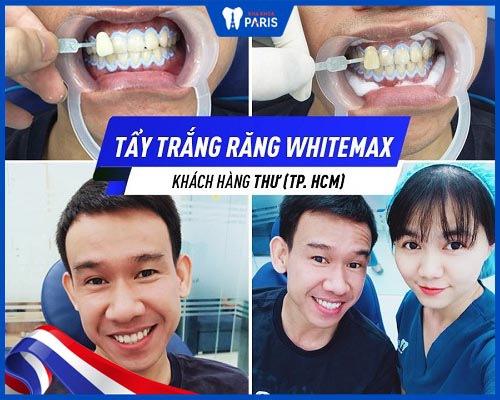 khách hàng làm trắng răng xong không ê buốt