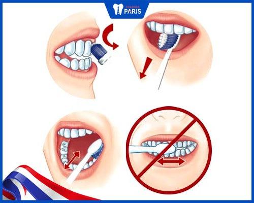 cách làm trắng răng ố vàng ở trẻ em