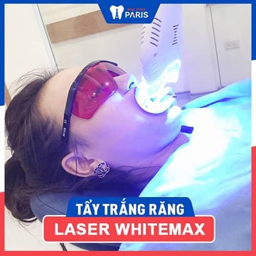 whitemax hiệu quả hơn làm trắng răng tại nhà