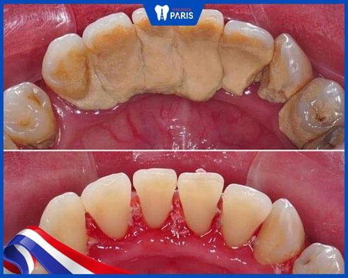 khách hàng lấy cao răng khuyến mãi
