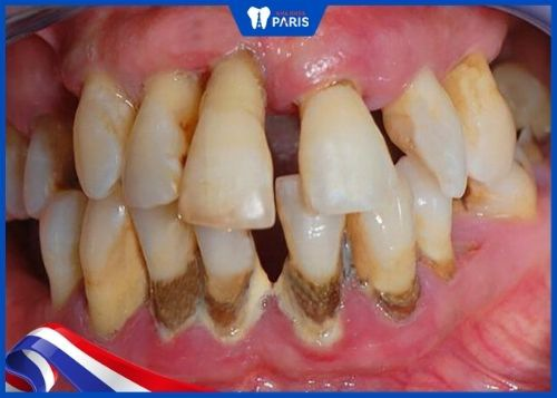 có nên lấy cao răng thường xuyên không