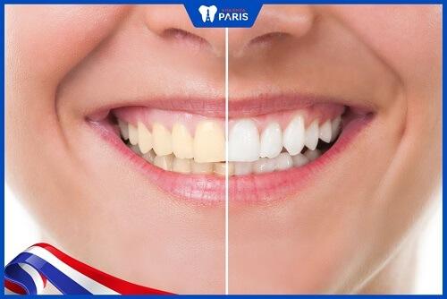 ưu điểm của máng tẩy trắng răng