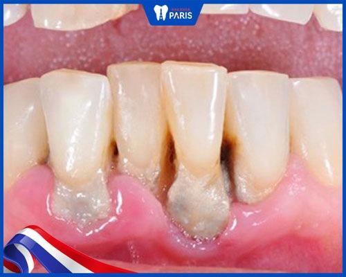 răng ê buốt do nền răng yếu