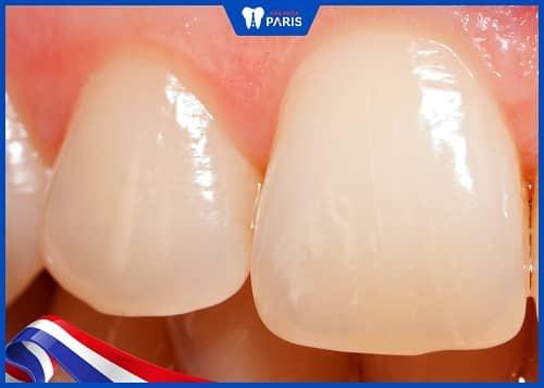 lý do ê buốt sau khi tẩy trắng răng