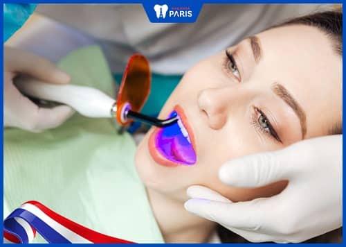 vì sao răng bị ê nhức sau khi làm trắng răng