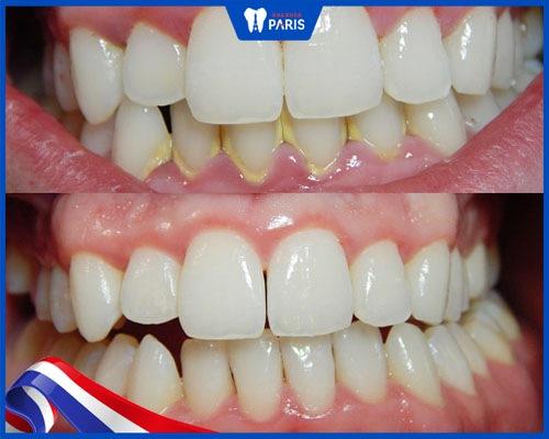 Kết quả lấy cao răng lần 2 của khách hàng Dương Thùy Linh